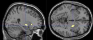 iDiet fMRI brain scans